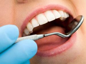 Dental Health Conditions